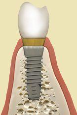 Implanty wprowadzone prawidłowo.