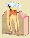 Przy zapaleniu miazgi leczenie kanałowe jest konieczne.