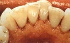 Po piaskowaniu zębów.