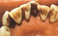 Przed piaskowaniem zębów.