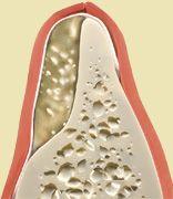 augmentacja kości